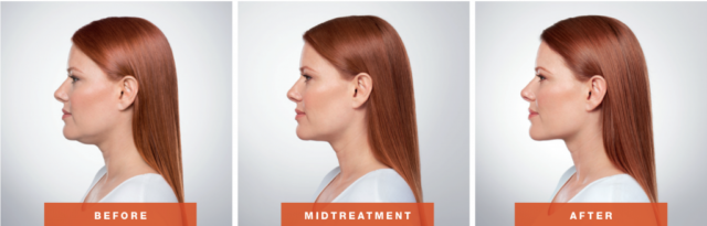 Kybella- by your south Charlotte Dermatologist