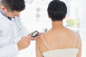 Skin Cancer Screenings- at Metrolina Dermatology